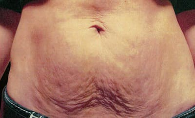 Exilis Ultra Gallery - Patient 9605672 - Image 1