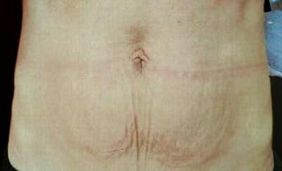 Exilis Ultra Gallery - Patient 9605672 - Image 2