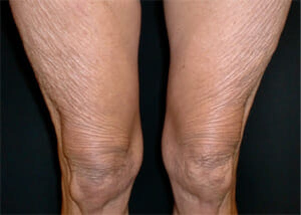Exilis Ultra Gallery - Patient 9605673 - Image 1