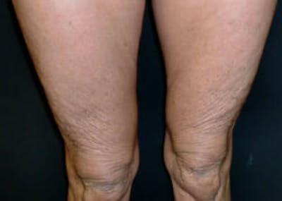 Exilis Ultra Gallery - Patient 9605673 - Image 2
