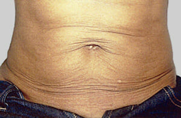 Exilis Ultra Gallery - Patient 9605674 - Image 1