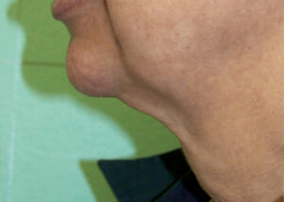 Exilis Ultra Gallery - Patient 9605675 - Image 1