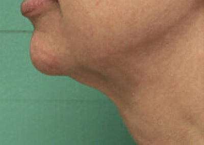Exilis Ultra Gallery - Patient 9605675 - Image 2