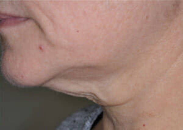 Exilis Ultra Gallery - Patient 9605676 - Image 1