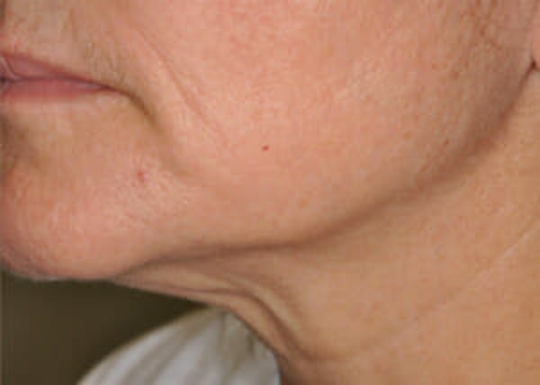 Exilis Ultra Gallery - Patient 9605676 - Image 2