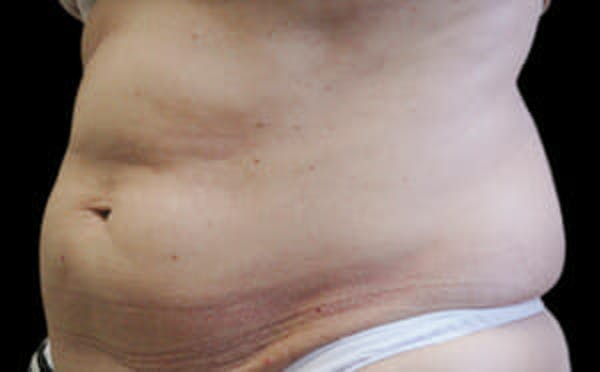 CoolSculpting® Gallery - Patient 9605677 - Image 3