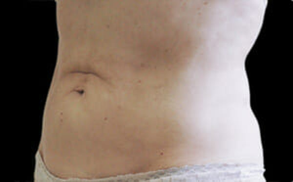 CoolSculpting® Gallery - Patient 9605677 - Image 4