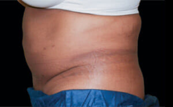 CoolSculpting® Gallery - Patient 9605681 - Image 1