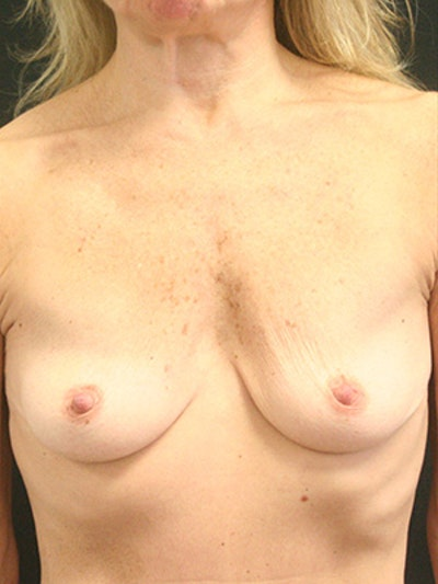 Breast Augmentation Gallery - Patient 9605683 - Image 1