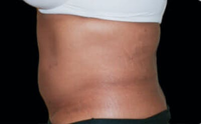 CoolSculpting® Gallery - Patient 9605681 - Image 2