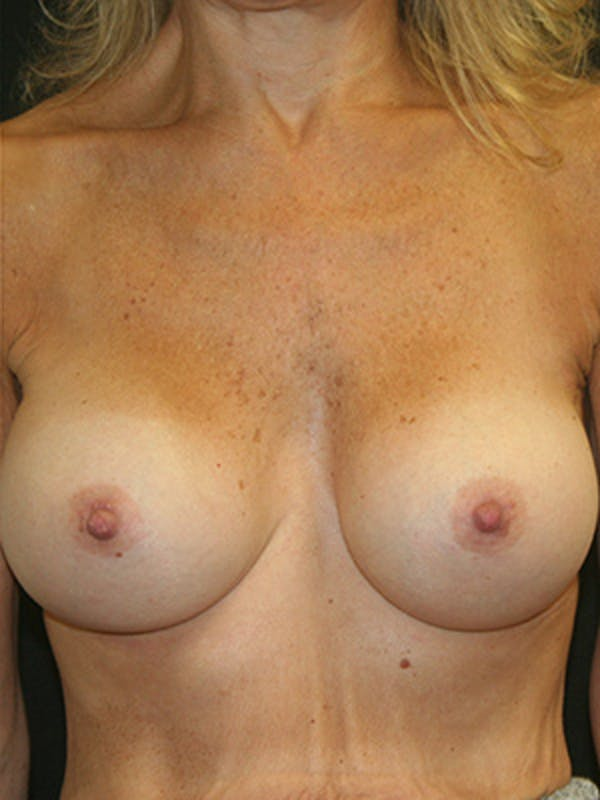 Breast Augmentation Gallery - Patient 9605683 - Image 2