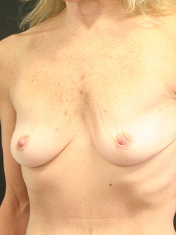 Breast Augmentation Gallery - Patient 9605683 - Image 3