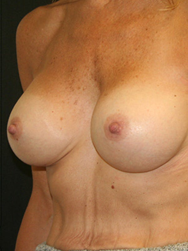 Breast Augmentation Gallery - Patient 9605683 - Image 4
