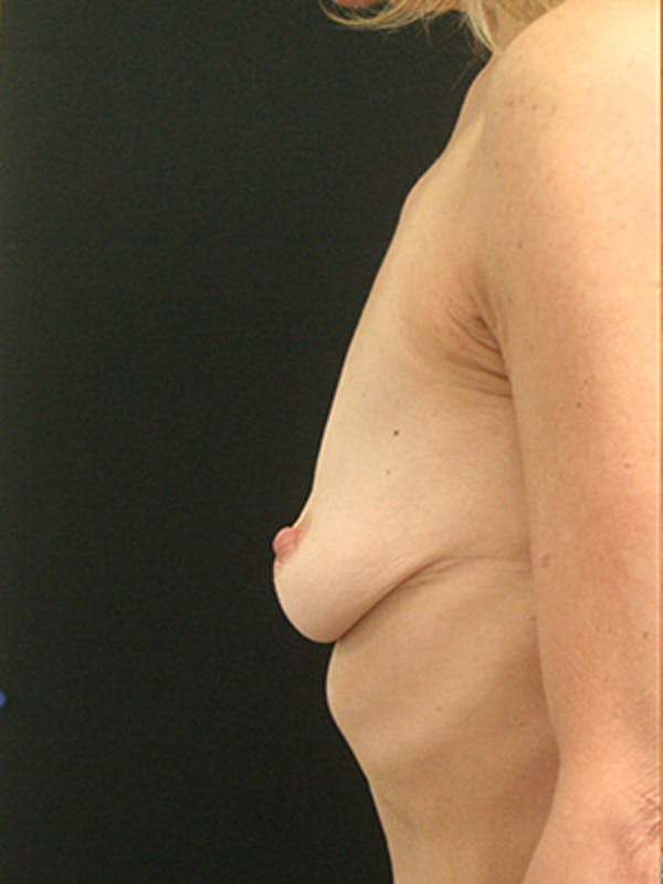 Breast Augmentation Gallery - Patient 9605683 - Image 5