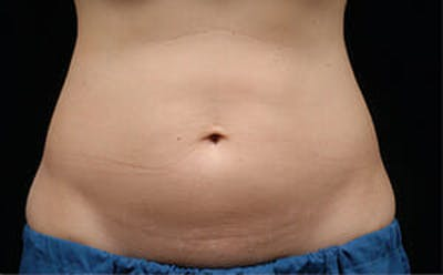 CoolSculpting® Gallery - Patient 9605684 - Image 1