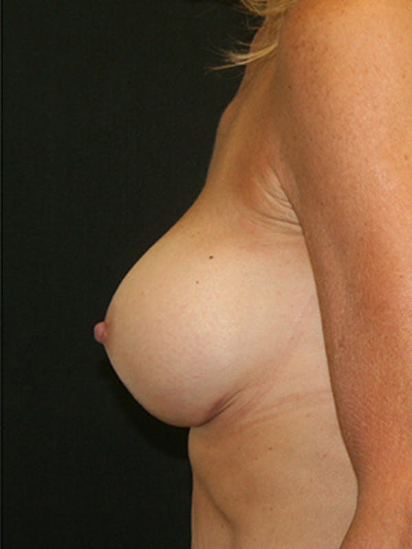 Breast Augmentation Gallery - Patient 9605683 - Image 6