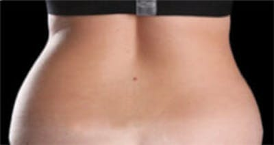 CoolSculpting® Gallery - Patient 9605686 - Image 1