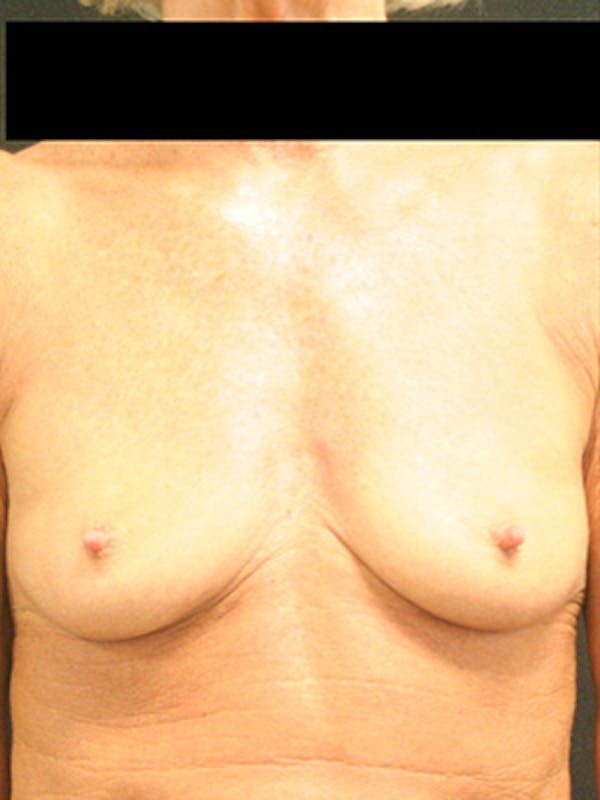 Breast Augmentation Gallery - Patient 9605695 - Image 1