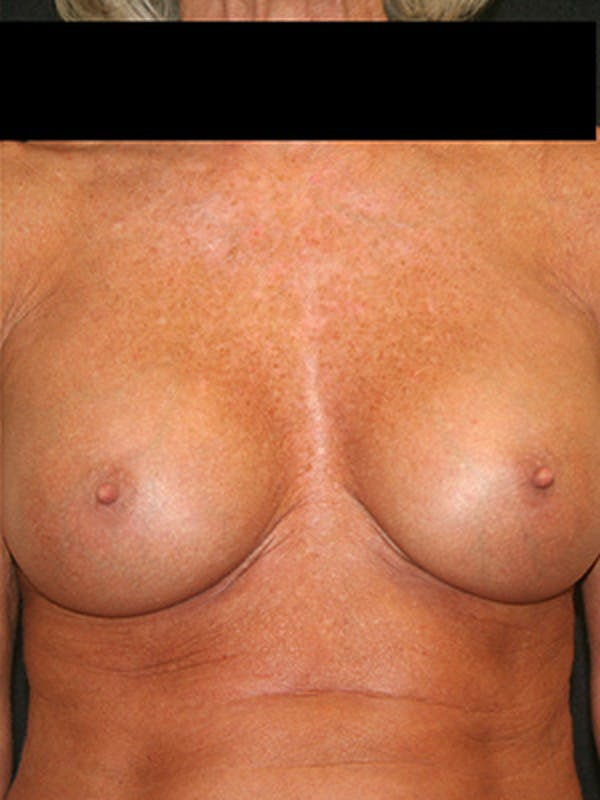 Breast Augmentation Gallery - Patient 9605695 - Image 2