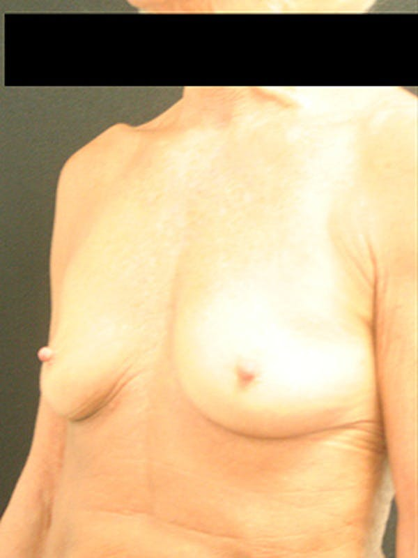 Breast Augmentation Gallery - Patient 9605695 - Image 3