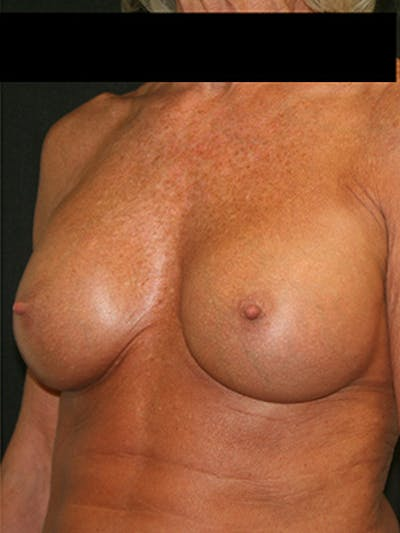Breast Augmentation Gallery - Patient 9605695 - Image 4
