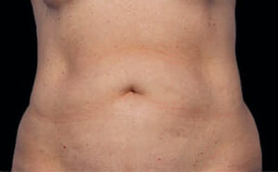 CoolSculpting® Gallery - Patient 9605688 - Image 1
