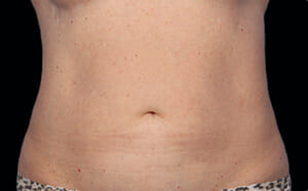 CoolSculpting® Gallery - Patient 9605688 - Image 2