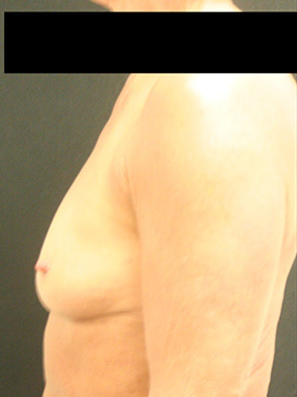 Breast Augmentation Gallery - Patient 9605695 - Image 5