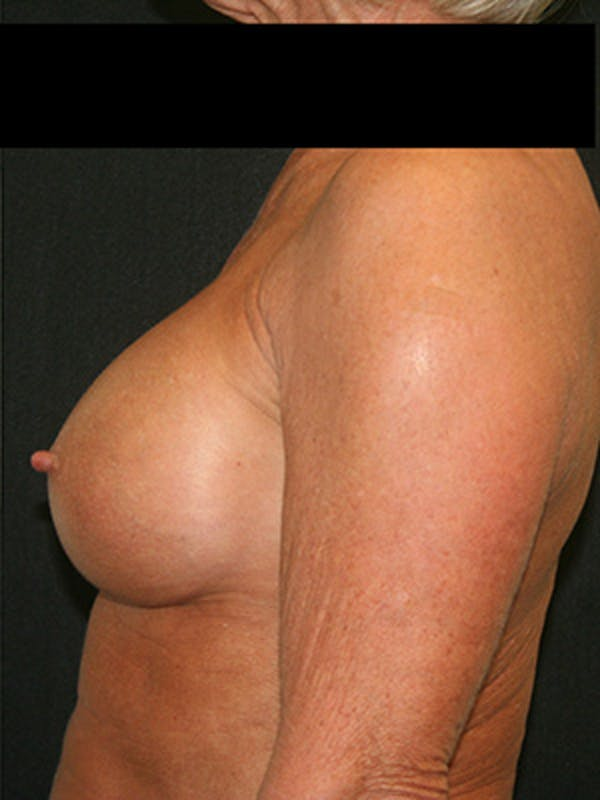 Breast Augmentation Gallery - Patient 9605695 - Image 6