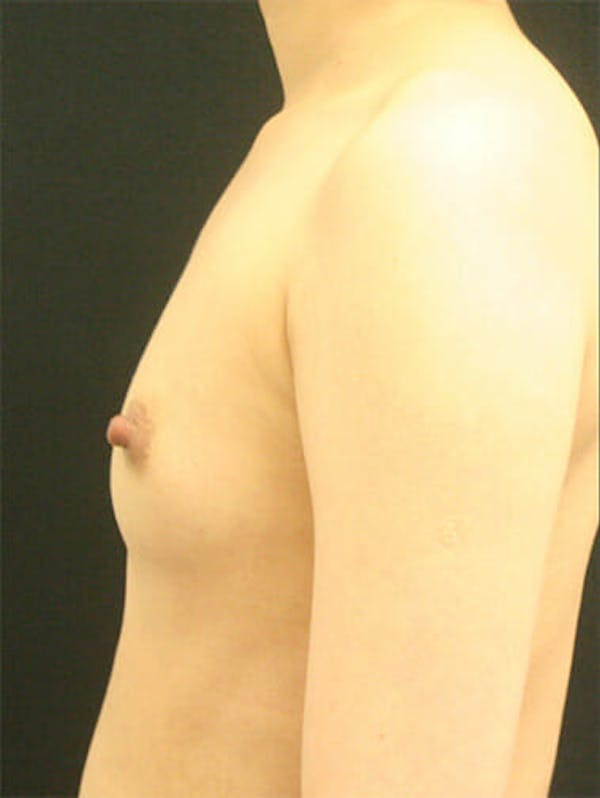Breast Augmentation Gallery - Patient 9605698 - Image 5