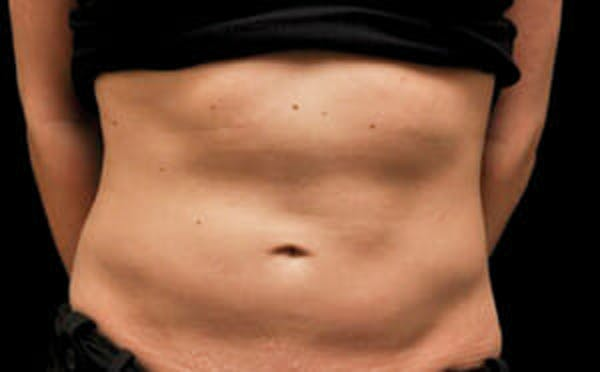 CoolSculpting® Gallery - Patient 9605699 - Image 1