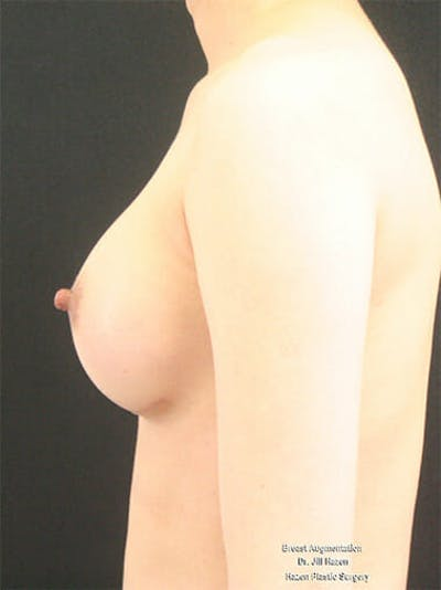 Breast Augmentation Gallery - Patient 9605698 - Image 6