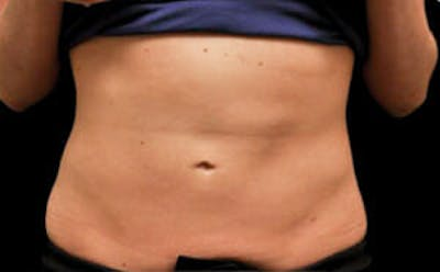 CoolSculpting® Gallery - Patient 9605699 - Image 2