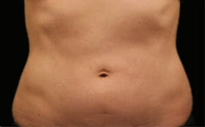 CoolSculpting® Gallery - Patient 9605700 - Image 1