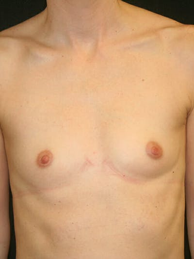 Breast Augmentation Gallery - Patient 9605704 - Image 1