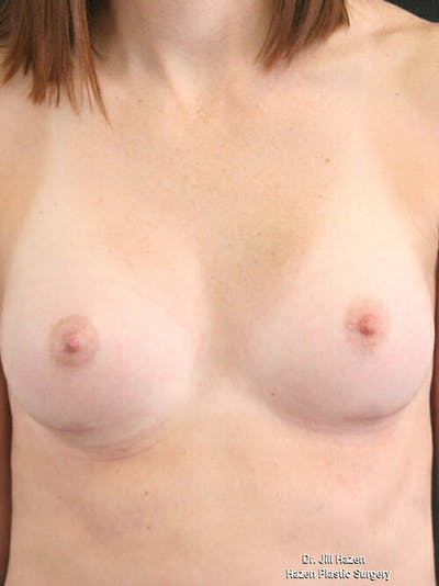 Breast Augmentation Gallery - Patient 9605704 - Image 2