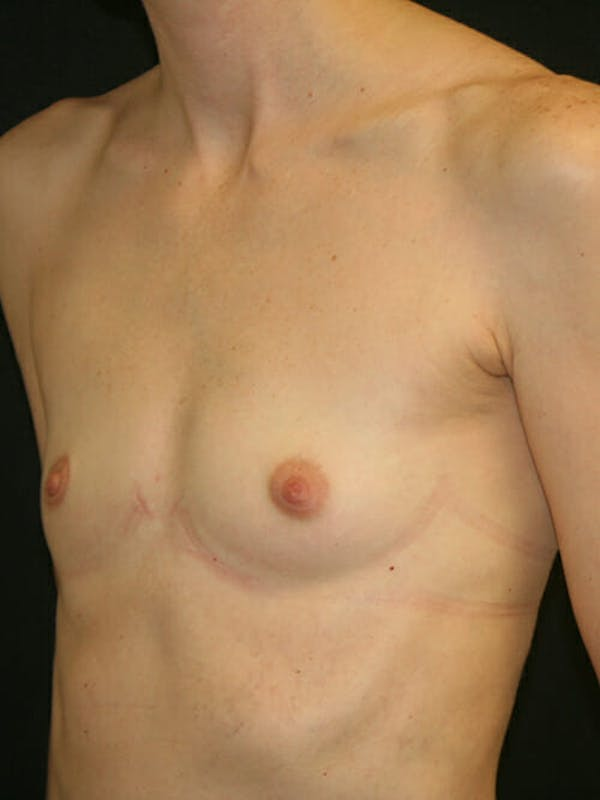 Breast Augmentation Gallery - Patient 9605704 - Image 3