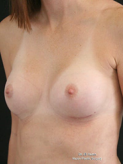 Breast Augmentation Gallery - Patient 9605704 - Image 4