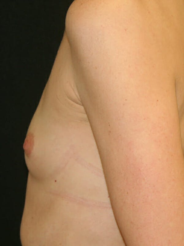 Breast Augmentation Gallery - Patient 9605704 - Image 5