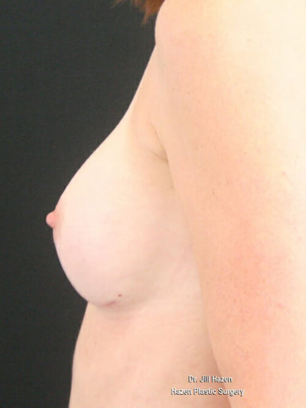 Breast Augmentation Gallery - Patient 9605704 - Image 6