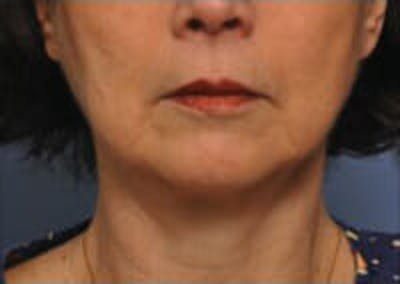 CoolSculpting® Gallery - Patient 9605705 - Image 1