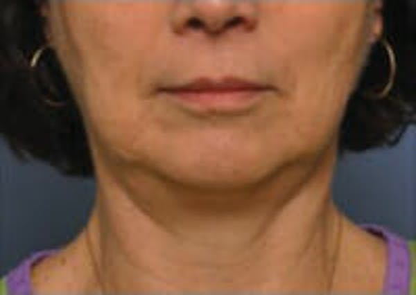 CoolSculpting® Gallery - Patient 9605705 - Image 2