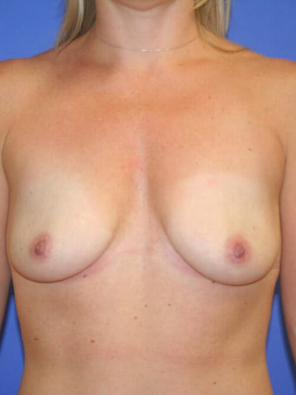 Breast Augmentation Gallery - Patient 9605715 - Image 1