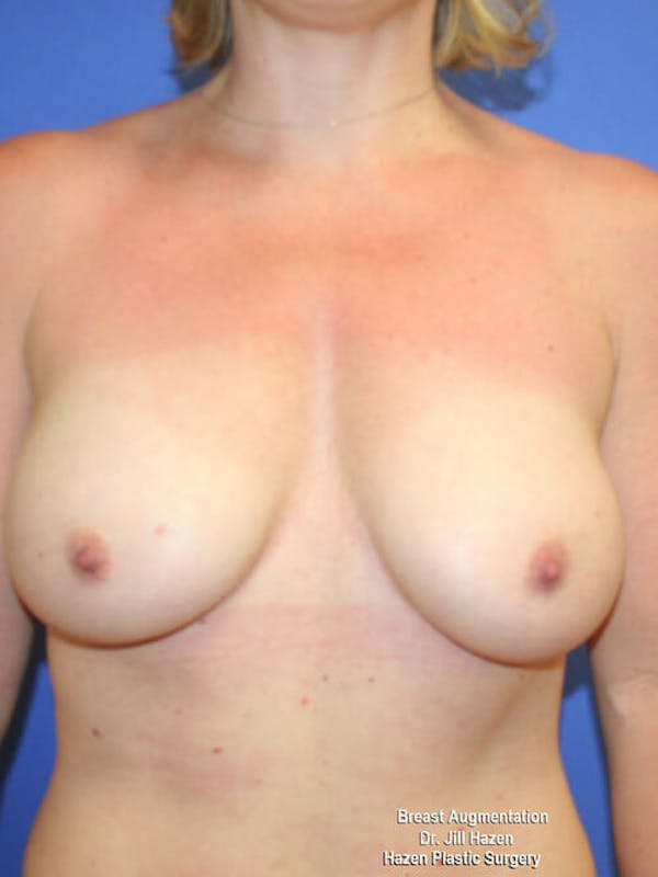 Breast Augmentation Gallery - Patient 9605715 - Image 2