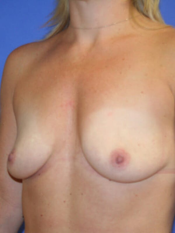 Breast Augmentation Gallery - Patient 9605715 - Image 3