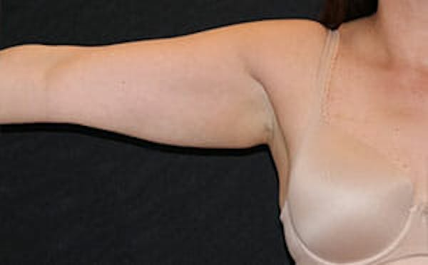 CoolSculpting® Gallery - Patient 9605706 - Image 2