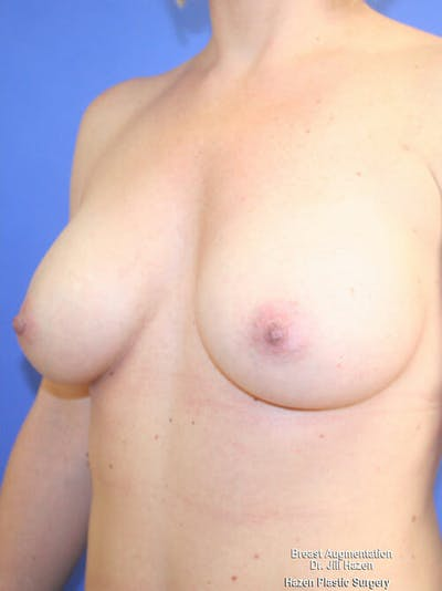 Breast Augmentation Gallery - Patient 9605715 - Image 4