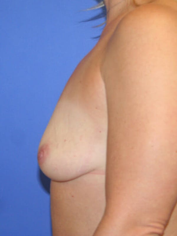 Breast Augmentation Gallery - Patient 9605715 - Image 5