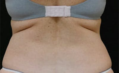 CoolSculpting® Gallery - Patient 9605716 - Image 1