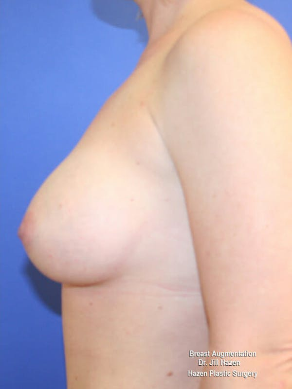 Breast Augmentation Gallery - Patient 9605715 - Image 6